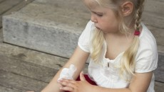 A little girl with eczema